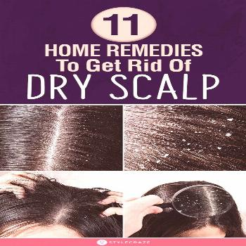 10 Best Home Remedies To Get Rid Of Dry Scalp 10 Best Home Remedies To Get Rid Of Dry Scalp: Saying